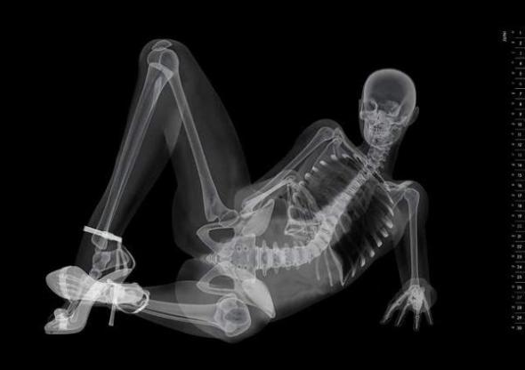 xray-pinup-july