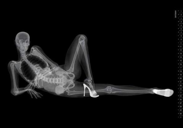 xray-pinup-march